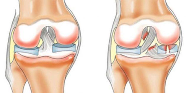 Почему болят колени: разрыв передней крестообразной связки