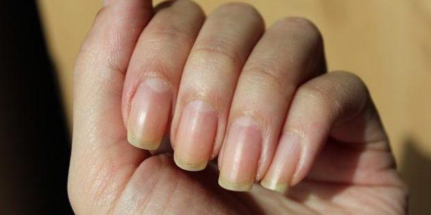 Жёлтые ногти из-за красного или оранжевого лака