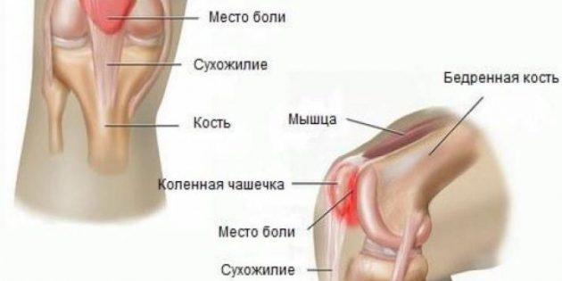 Почему болят колени: пателлофеморальный болевой синдром