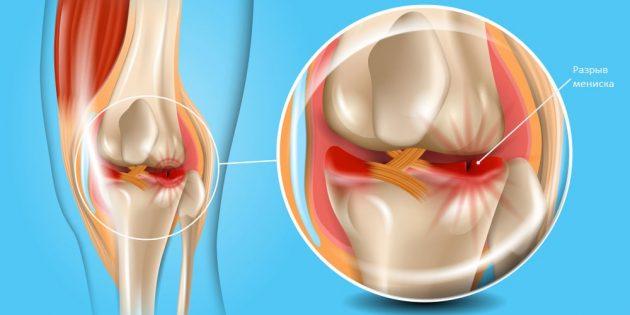 Почему болят колени: травма мениска