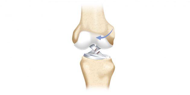 Почему болят колени: разрыв связки
