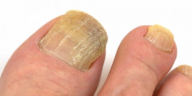 Дерматомикоз: грибок ногтя