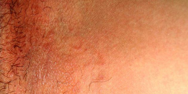 Паховый дерматомикоз