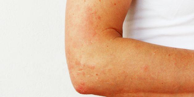 Сыпь на руках: фотоаллергия