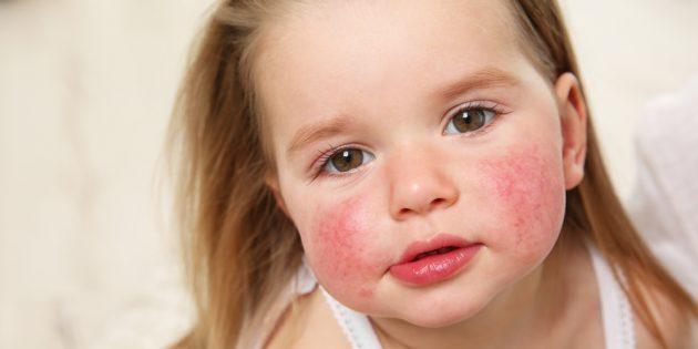 Сыпь на лице: пищевая аллергия