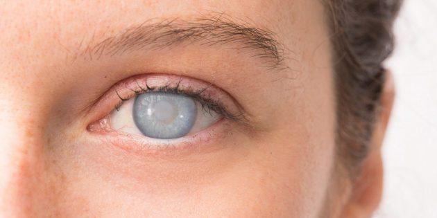 Так выглядит бельмо на глазу