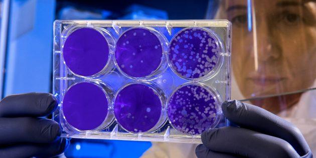 Факты о человеческом теле: в вас обитает три килограмма бактерий