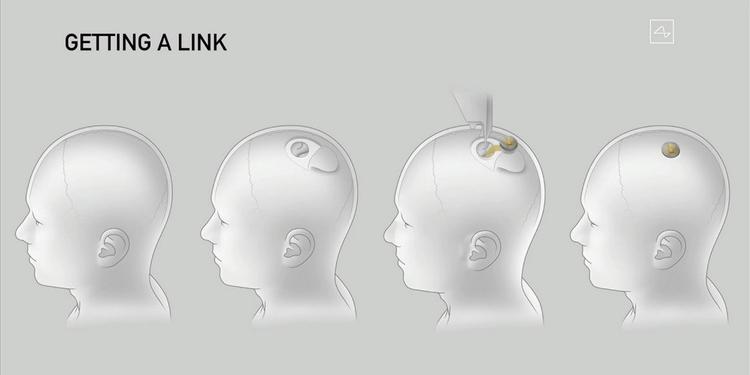 чип Link