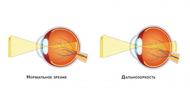 Слева — нормальное зрение, справа — дальнозоркость (гиперметропия)