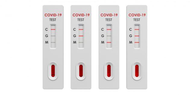 Расшифровка анализа на антитела к коронавирусу