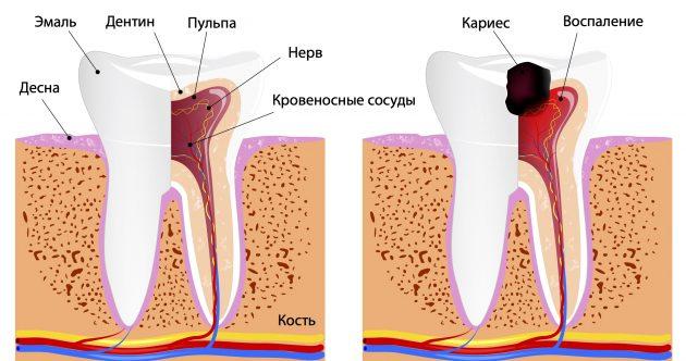 Слева — здоровый зуб, справа — пульпит