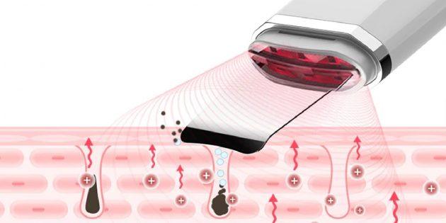Выгодно: прибор для ультразвуковой чистки лица