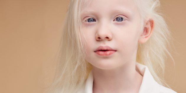 Девочка с кожноглазным альбинизмом