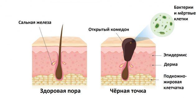 Как избавиться от чёрных точек: комедоны образуются, когда мёртвые клетки и кожный жир не успевают вовремя покинуть пору