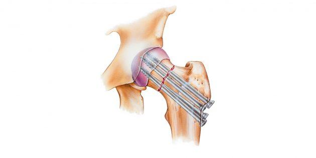 При переломе шейки бедра делают внутреннюю фиксацию бедренной кости винтами