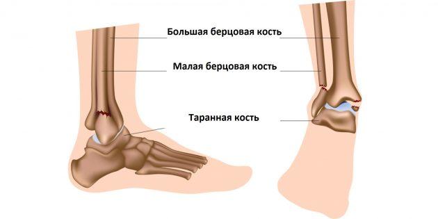 При переломе лодыжки страдают кости, составляющие голеностопный сустав