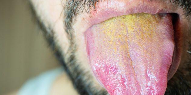 Жёлтый налёт на языке