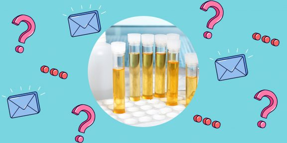 Что делать, если в моче появился белок?
