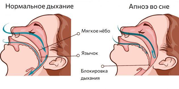 Дыхательные пути во время сна сужаются, поэтому возникает апноэ