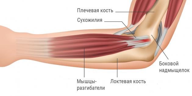 Боль в локте возникает, если нарушается работа одного из его составляющих элемента