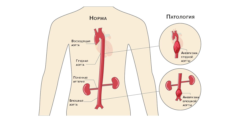 Аневризма аорты: в груди и в брюшной полости