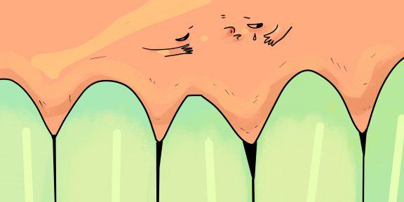 Почему болят дёсны и что с этим делать