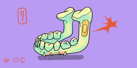 Почему болит челюсть и как избавиться от неприятных ощущений