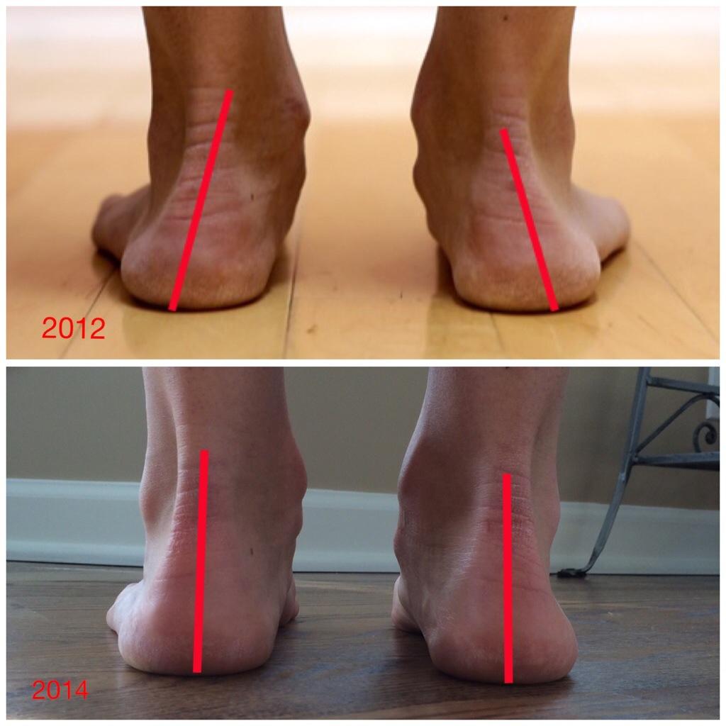 715c9c46 Как бег в минималистичных кроссовках меняет стопы - Лайфхакер
