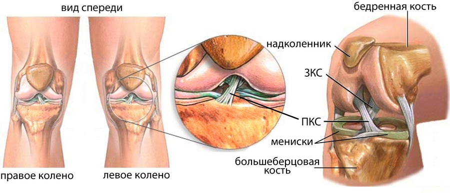 лечение суставов растяжение